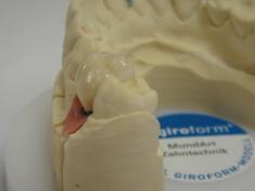 Krone auf Implantat2