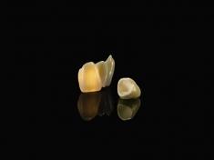 Kronen aus Zirkon (ZrO2)