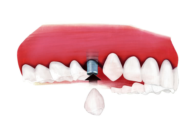 Grafik Zahnlücke