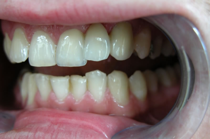 Implantat 1