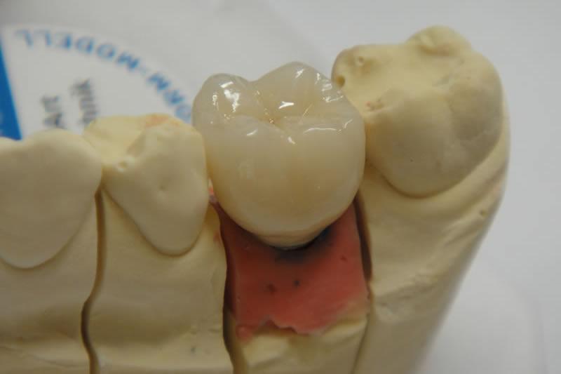 Implantat 3